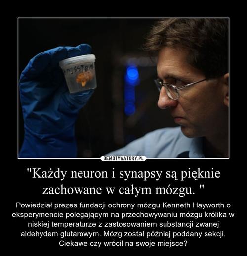 """""""Każdy neuron i synapsy są pięknie zachowane w całym mózgu. """""""