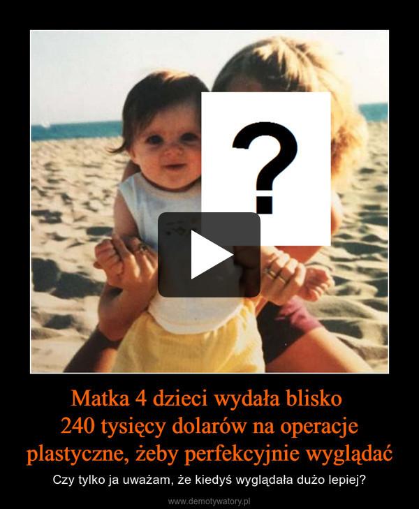 Matka 4 dzieci wydała blisko 240 tysięcy dolarów na operacje plastyczne, żeby perfekcyjnie wyglądać – Czy tylko ja uważam, że kiedyś wyglądała dużo lepiej?