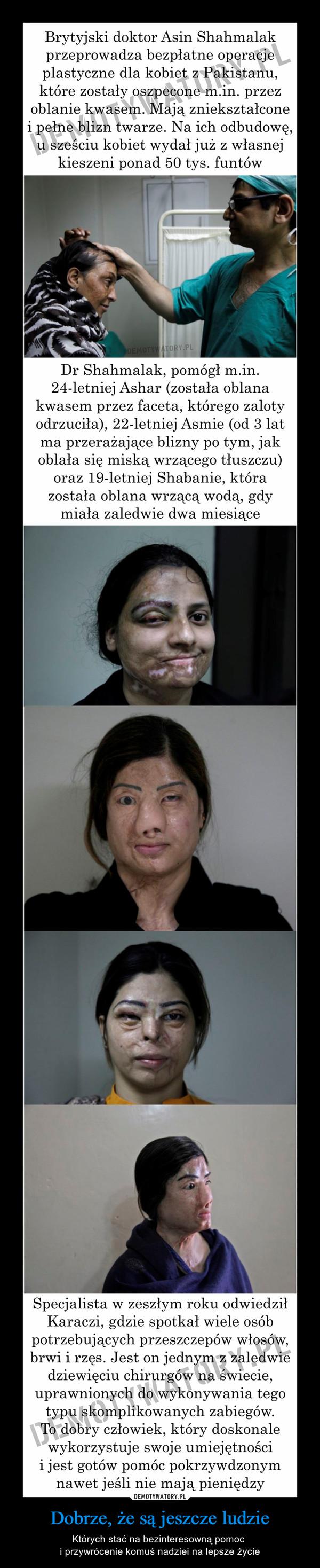 Dobrze, że są jeszcze ludzie – Których stać na bezinteresowną pomoc i przywrócenie komuś nadziei na lepsze życie Brytyjski doktor Asin Shahmalakprzeprowadza bezpłatne operacjeplastyczne dla kobiet z Pakistanu,które zostały oszpecone m.in. przezoblanie kwasem. Maja zniekształconei pełne blizn twarze. Na ich odbudowęu sześciu kobiet wydał już z własnejkieszeni ponad 50 tys. funtówDr Shahmalak, pomógł m.in.24-letniej Ashar (została oblanakwasem przez faceta, którego zalotyodrzuciła), 22-letniej Asmie (od 3 latma przerażające blizny po tym, jakoblała się miską wrzącego tłuszczu)oraz 19-letniej Shabanie, którazostała oblana wrzącą wodą, gdyiała zaledwie dwa miesiąceSpecjalista w zeszłym roku odwiedziłKaraczi, gdzie spotkał wiele osóbpotrzebujących przeszczepów włosów,brwi i rzęs. Jest on jednym z zaledwiedziewięciu chirurgów na swiecie,uprawnionych do wykonywania tegotypu skomplikowanych zabiegówTo dobry człowiek, który doskonalewykorzystuje swoje umiejętnościi jest gotów pomóc pokrzywdzonymnawet jeśli nie mają pieniędzy