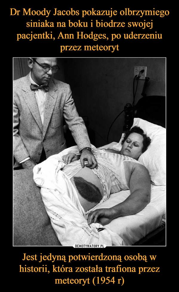 Jest jedyną potwierdzoną osobą w historii, która została trafiona przez meteoryt (1954 r) –
