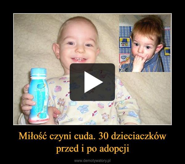 Miłość czyni cuda. 30 dzieciaczków przed i po adopcji –