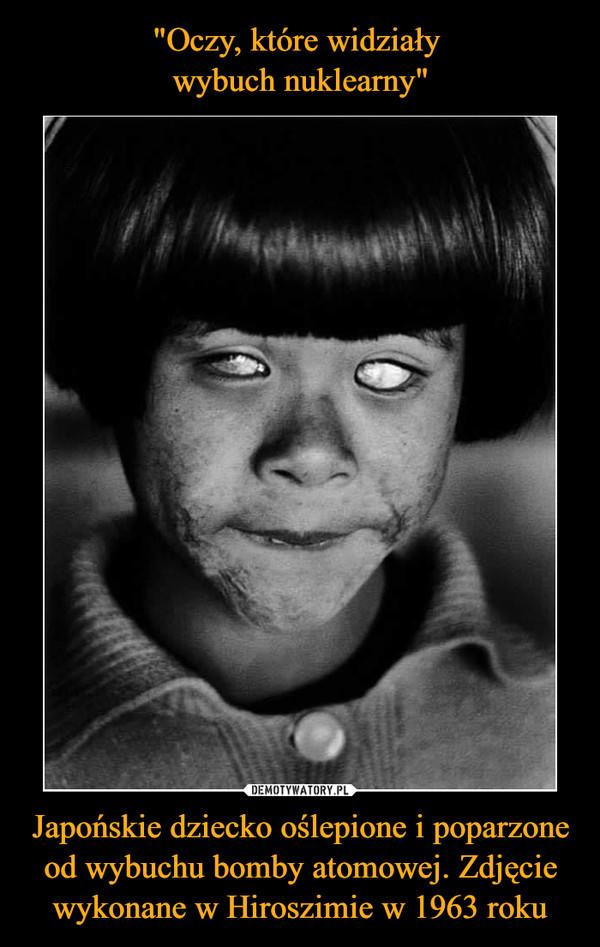 Japońskie dziecko oślepione i poparzone od wybuchu bomby atomowej. Zdjęcie wykonane w Hiroszimie w 1963 roku –