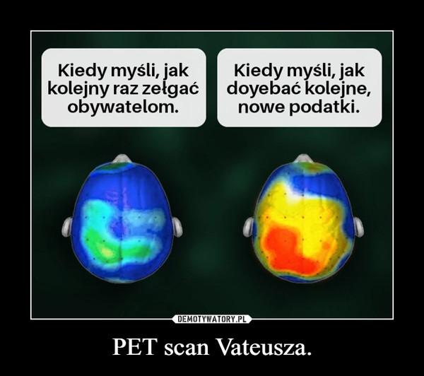 PET scan Vateusza. –